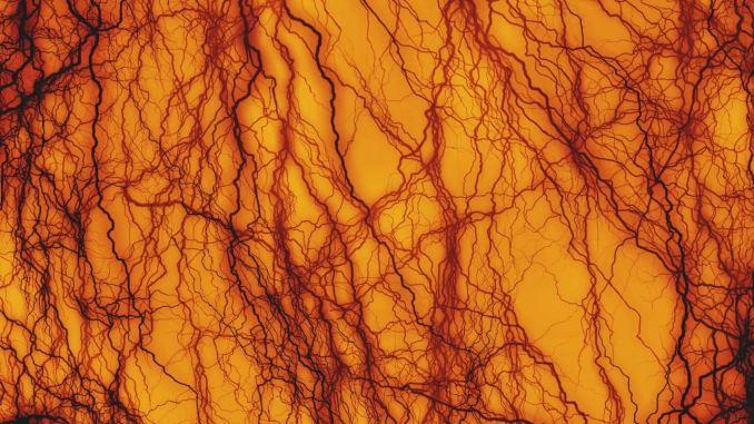 Aterosclerosis, se han desarrollado nuevos péptidos sintéticos para prevenirla